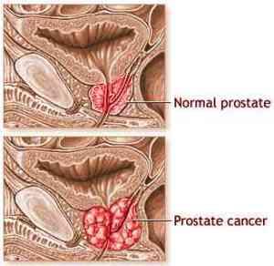 prostate-cancer3