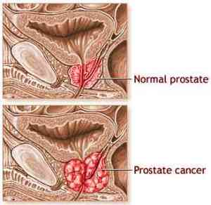 prostate-cancer4