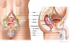 prostate1